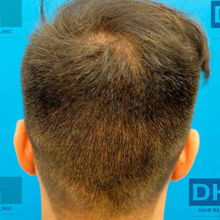 31-days-back-of-head-after-FUE-hair-transplant-surgery-(1)