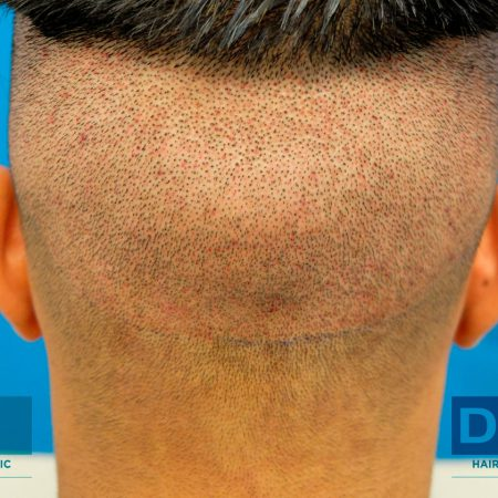 fue-hair-transplant-2593-grafts-day-1-post-op
