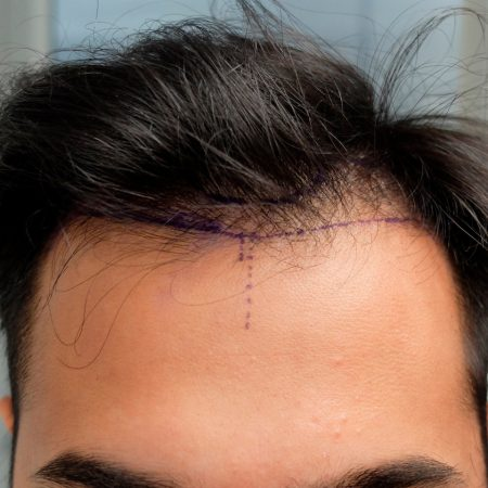 patient-hair-transplant-surgery-mapping-out-hairline